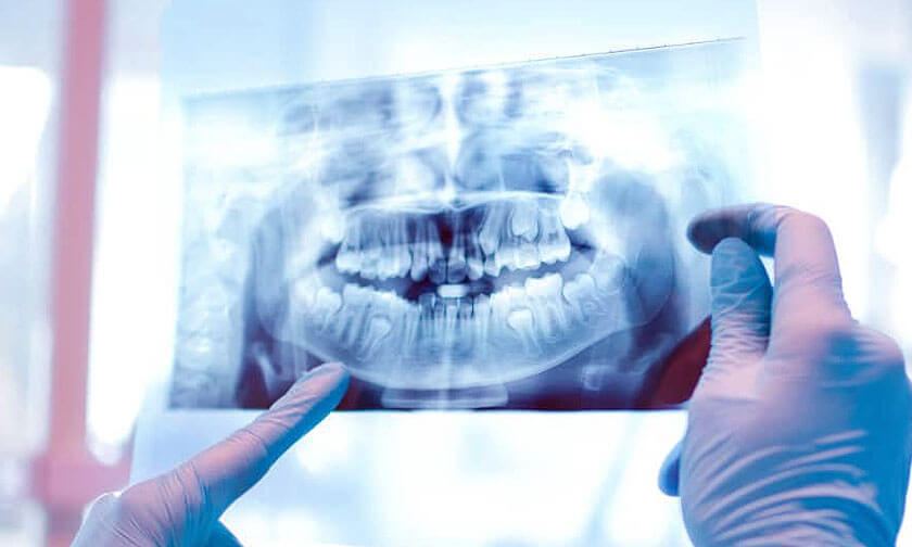 EVERYTHING-ABOUT-DENTAL-X-RAYS - Clearview Dental - Dentist Round Rock