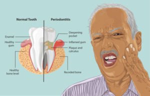 Periodontitis   Clearview Dental - Dentist Round Rock