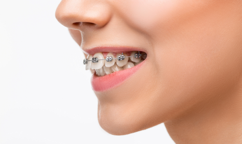 orthodontic treatment in round rock